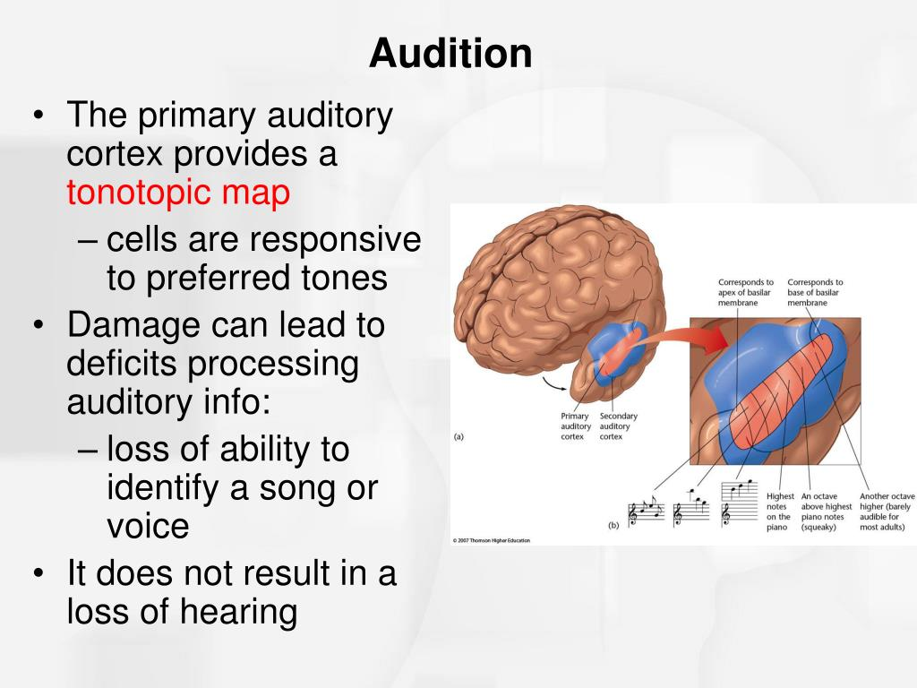 The primary auditory cortex provides a