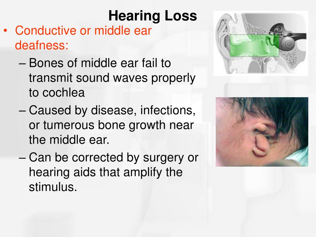 Conductive or middle ear deafness: