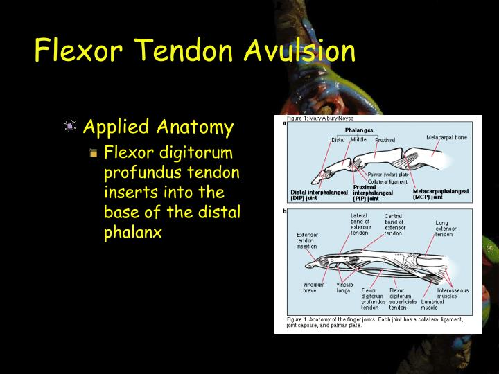 Flexor Tendon Avulsion