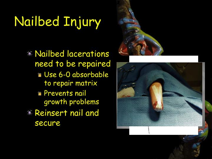 Nailbed Injury