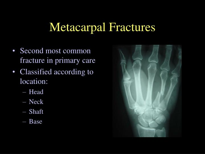 Ppt Management Of Extremity Fractures Powerpoint
