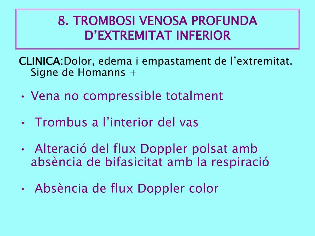 8. TROMBOSI VENOSA PROFUNDA D'EXTREMITAT INFERIOR