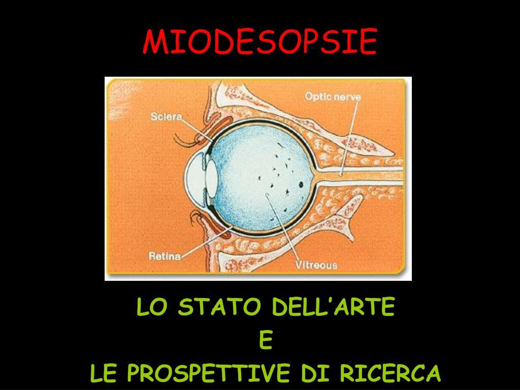 miodesopsie