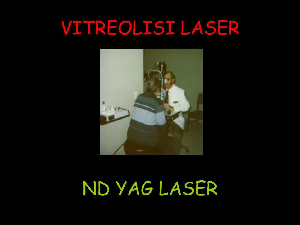 VITREOLISI LASER