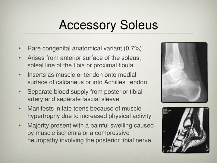 Accessory Soleus