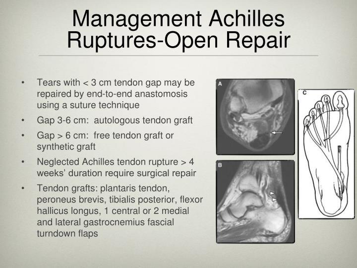 Management Achilles Ruptures-Open Repair