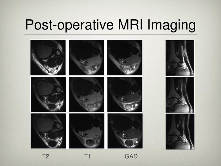 Post-operative MRI Imaging