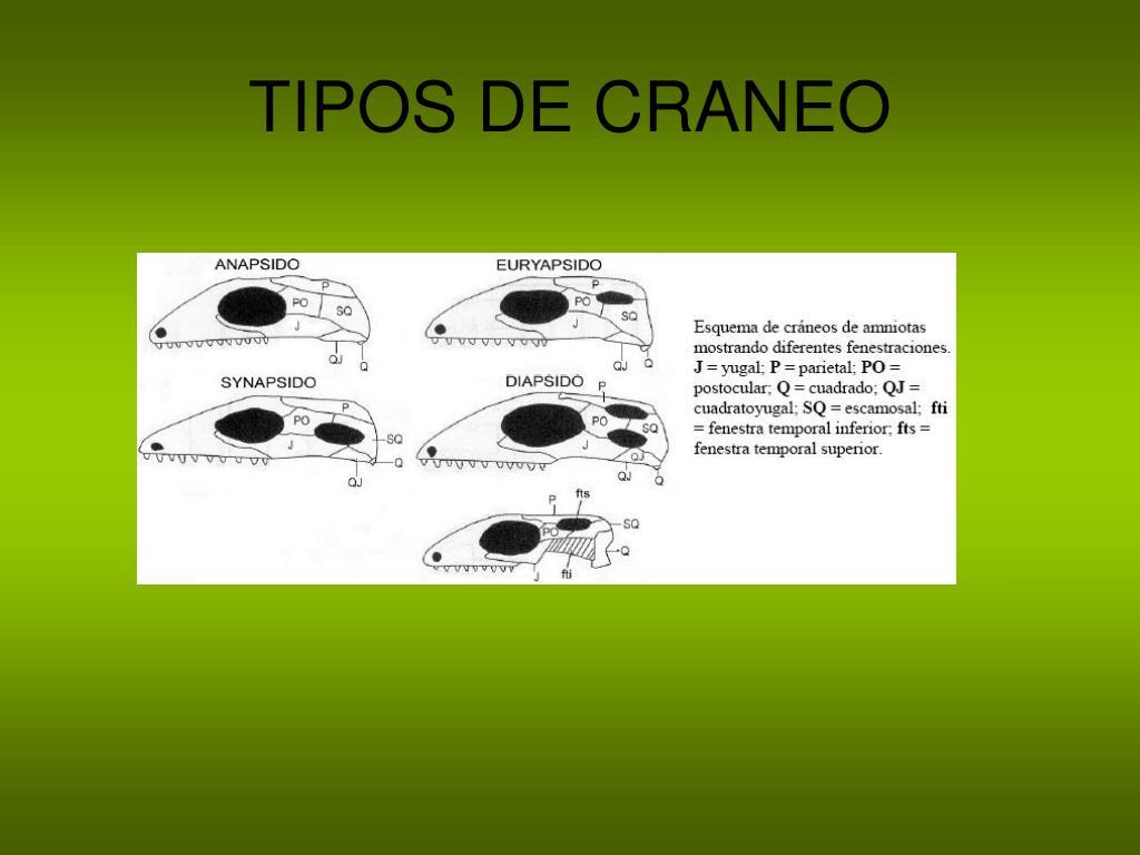 TIPOS DE CRANEO