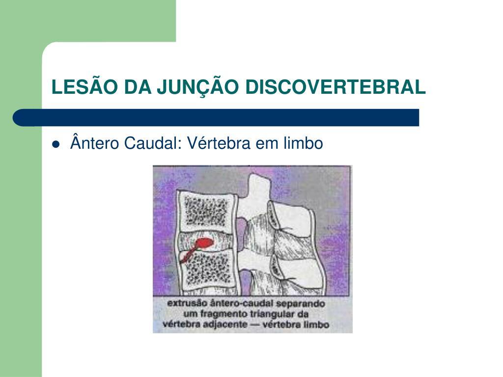 LESÃO DA JUNÇÃO DISCOVERTEBRAL