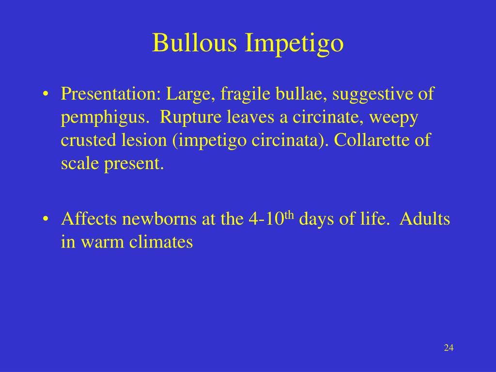 Bullous Impetigo