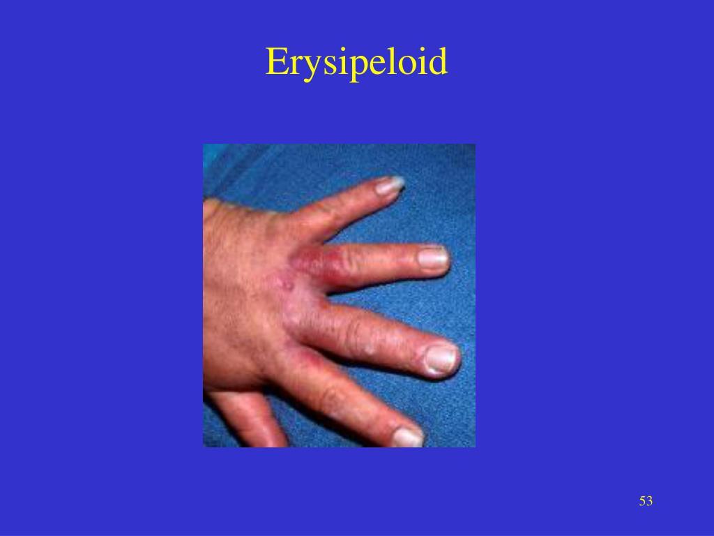 Erysipeloid