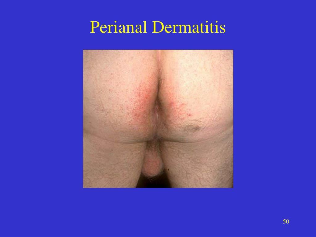 Perianal Dermatitis