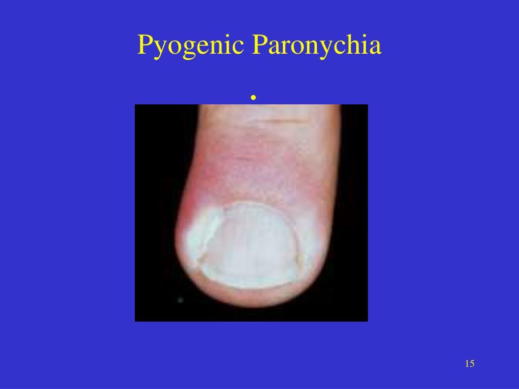 Pyogenic Paronychia