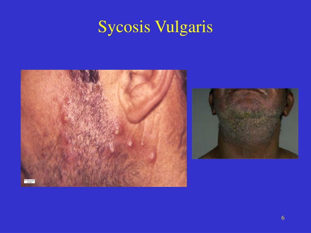 Sycosis Vulgaris
