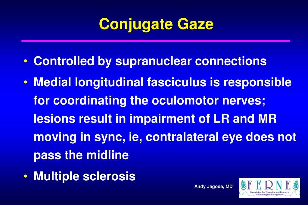 Conjugate Gaze