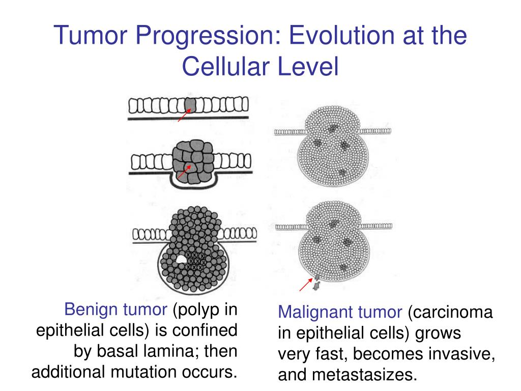 Tumor Progression: Evolution at the Cellular Level