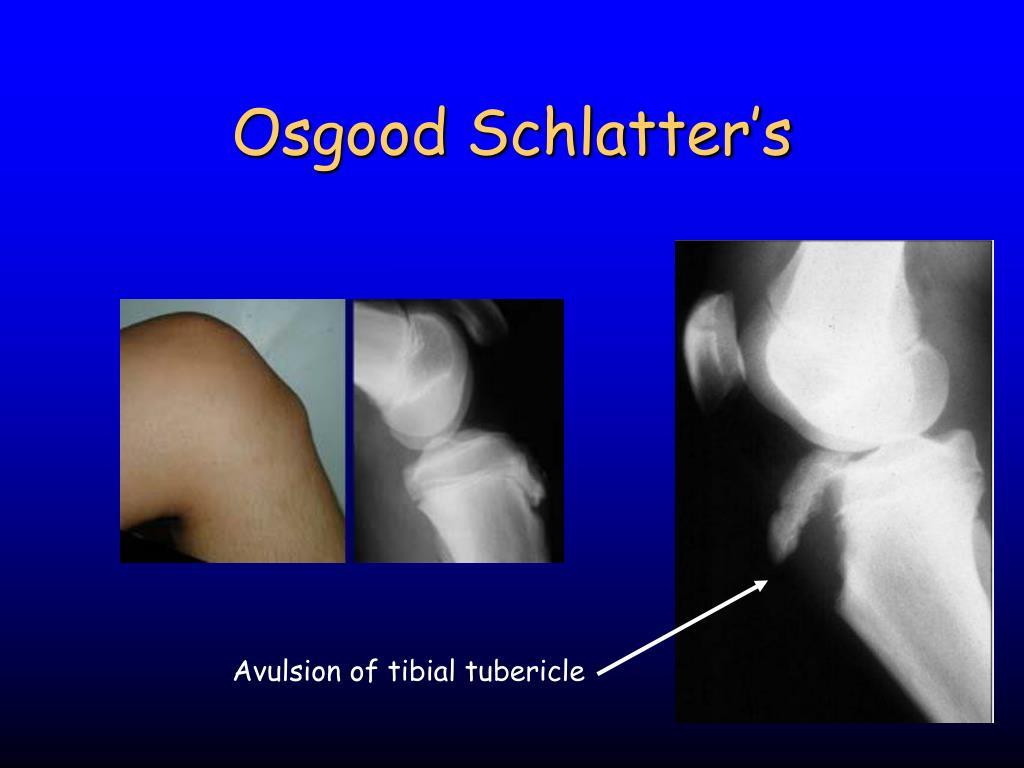 what is schlatters disease