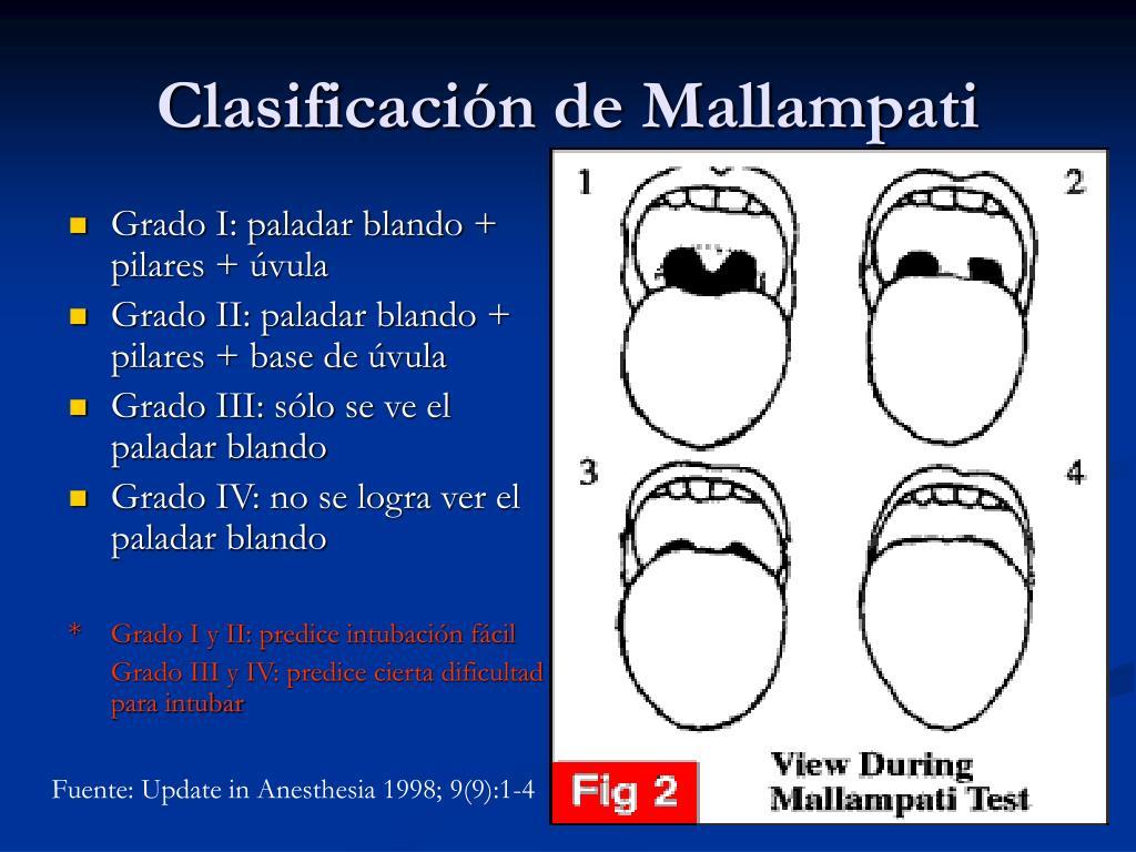 Grado I: paladar blando + pilares + úvula