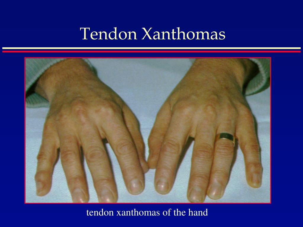 Tendon Xanthoma PPT - Hyperlipidemia i...