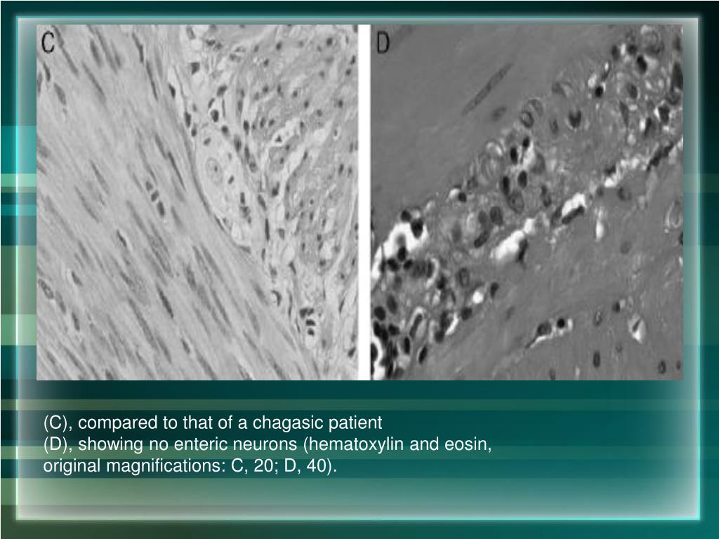 (C), compared to that of a chagasic patient