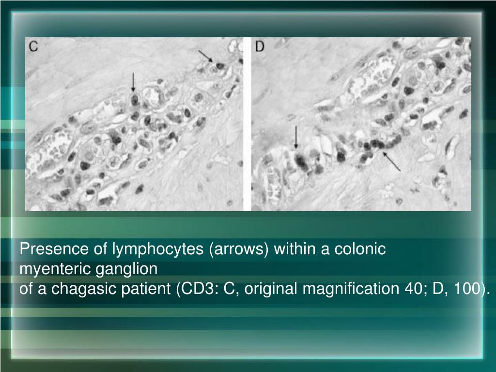 Presence of lymphocytes (arrows) within a colonic