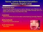 vacina contra sarampo caxumba e rub ola tr plice viral
