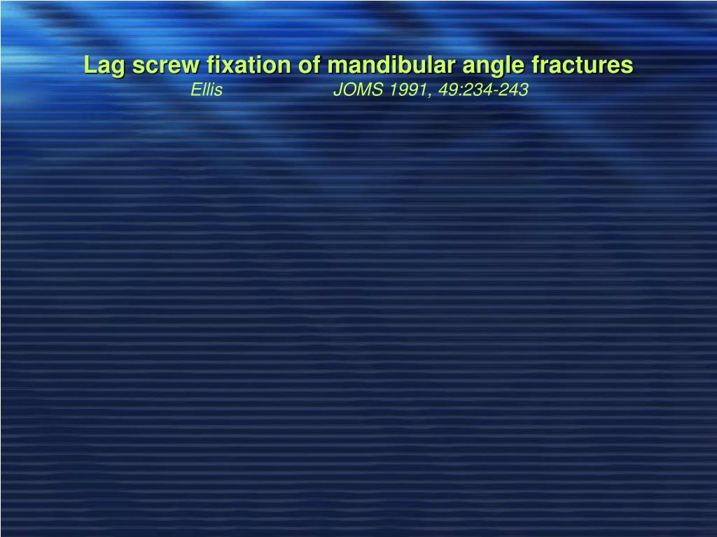 Lag screw fixation of mandibular angle fractures
