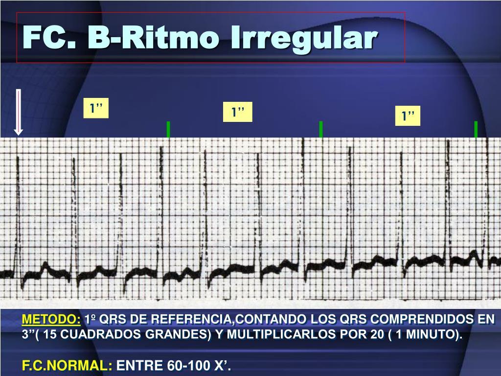 FC. B-Ritmo Irregular