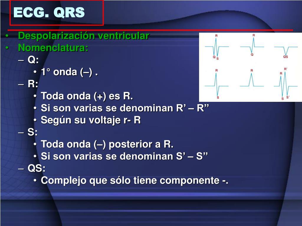 Despolarización ventricular