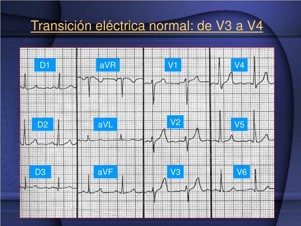 Transición eléctrica normal: de V3 a V4