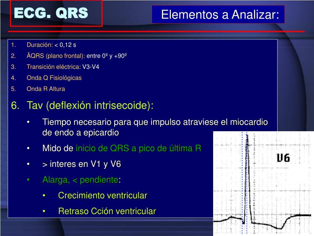 ECG. QRS