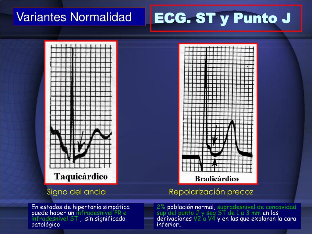 ECG. ST y Punto J