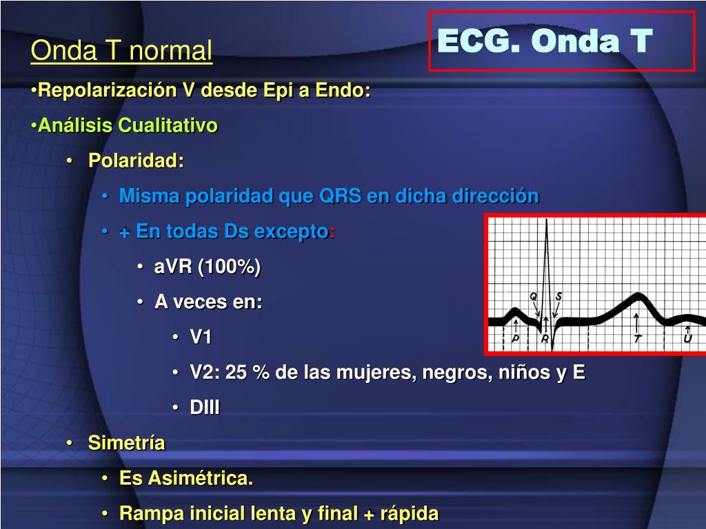 ECG. Onda T