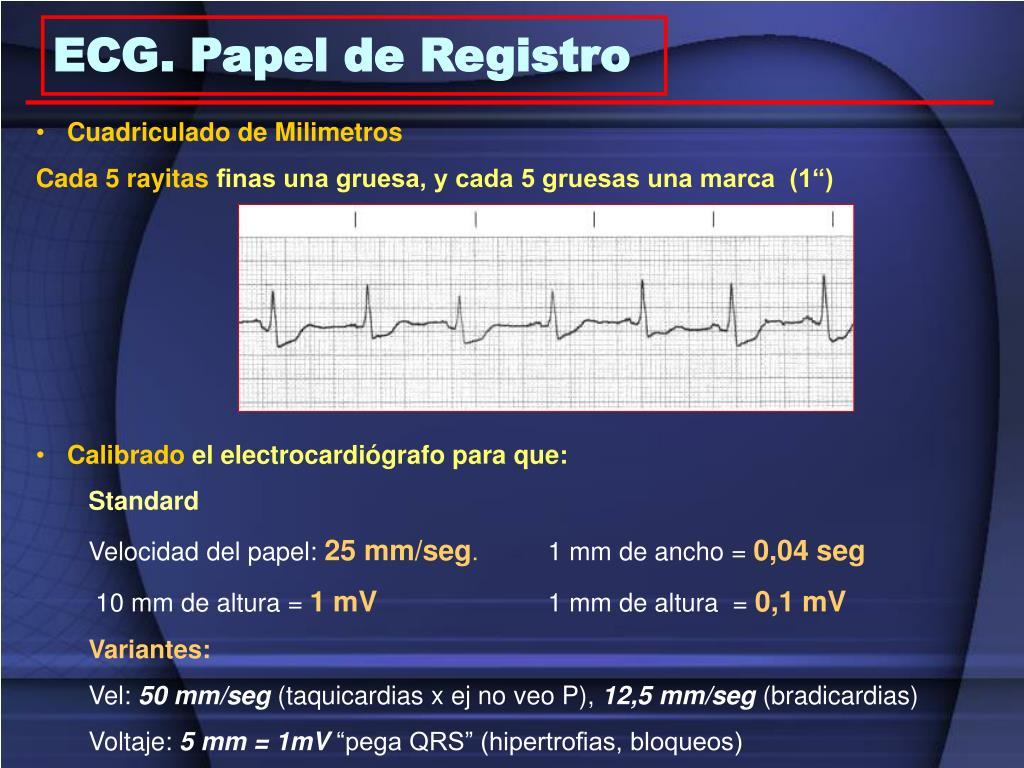 ECG. Papel de Registro