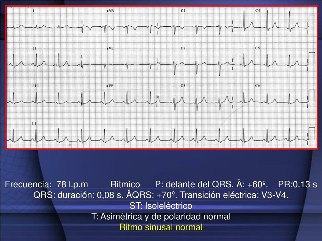 Frecuencia:  78 l.p.m         Ritmico      P: delante del QRS. Â: +60º.    PR:0.13 s