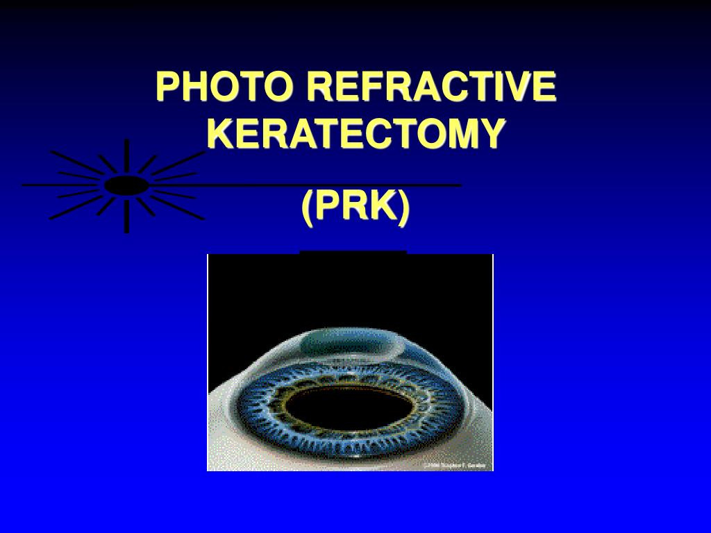 PHOTO REFRACTIVE KERATECTOMY