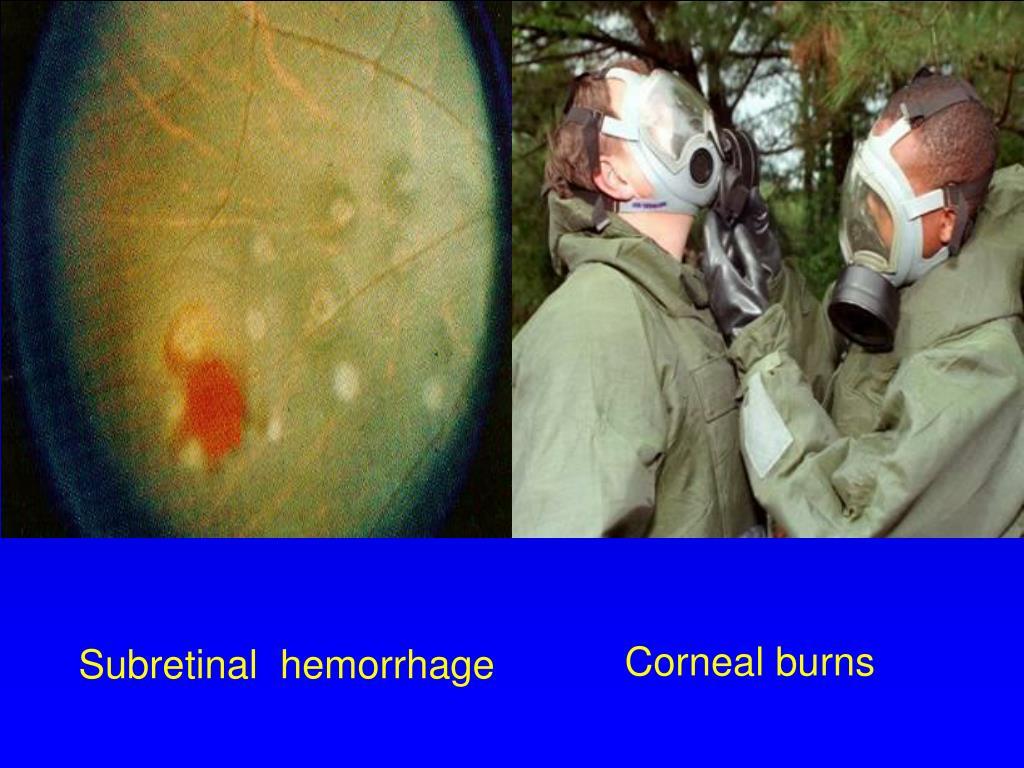 Corneal burns