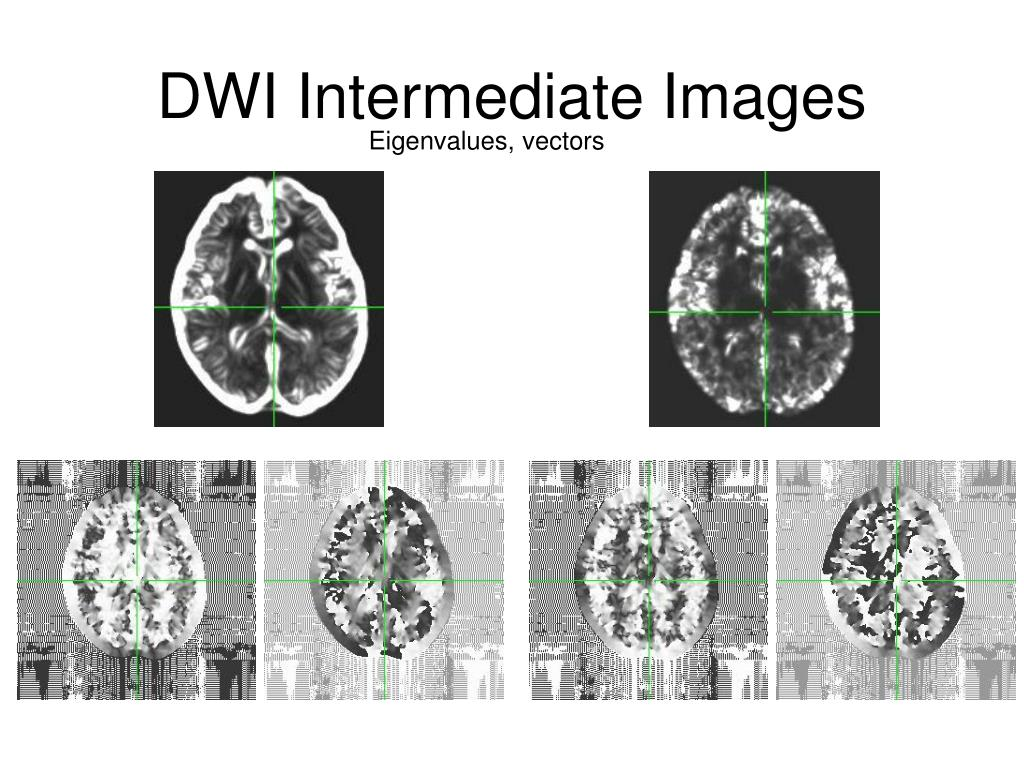 DWI Intermediate Images