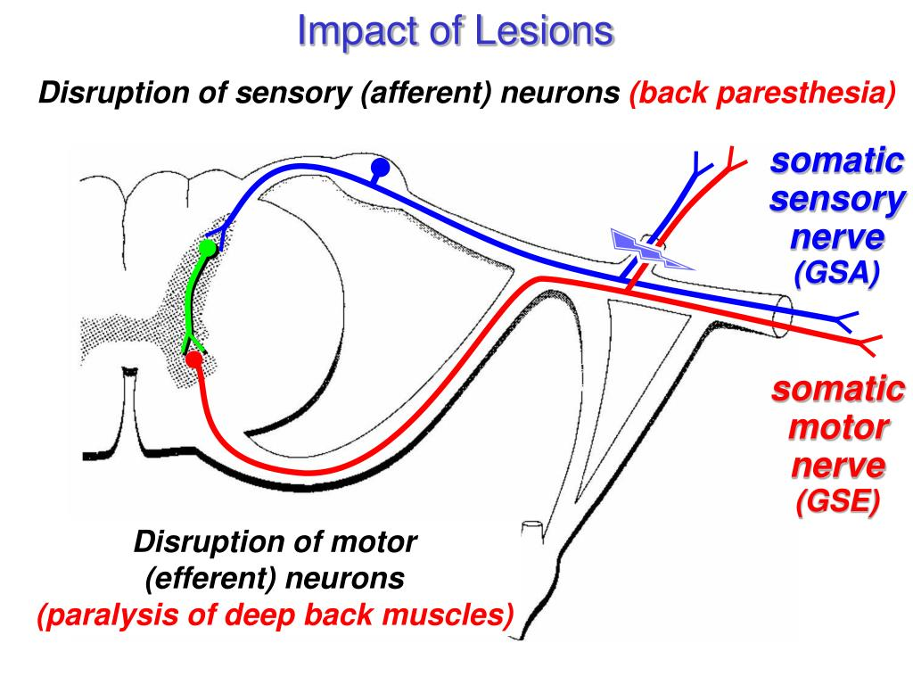 Impact of Lesions