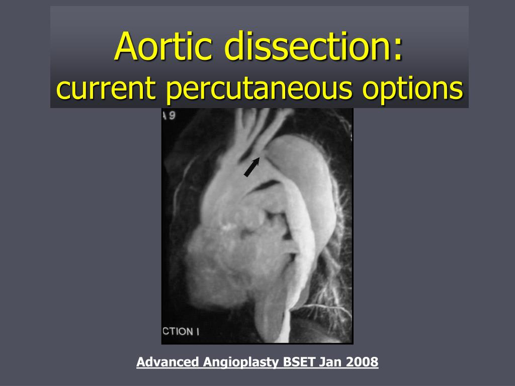Aortic dissection: