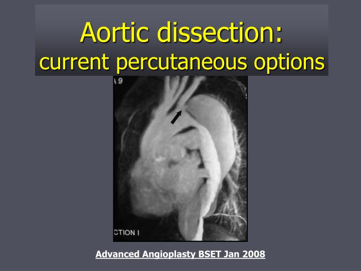 Aortic dissection current percutaneous options l.jpg