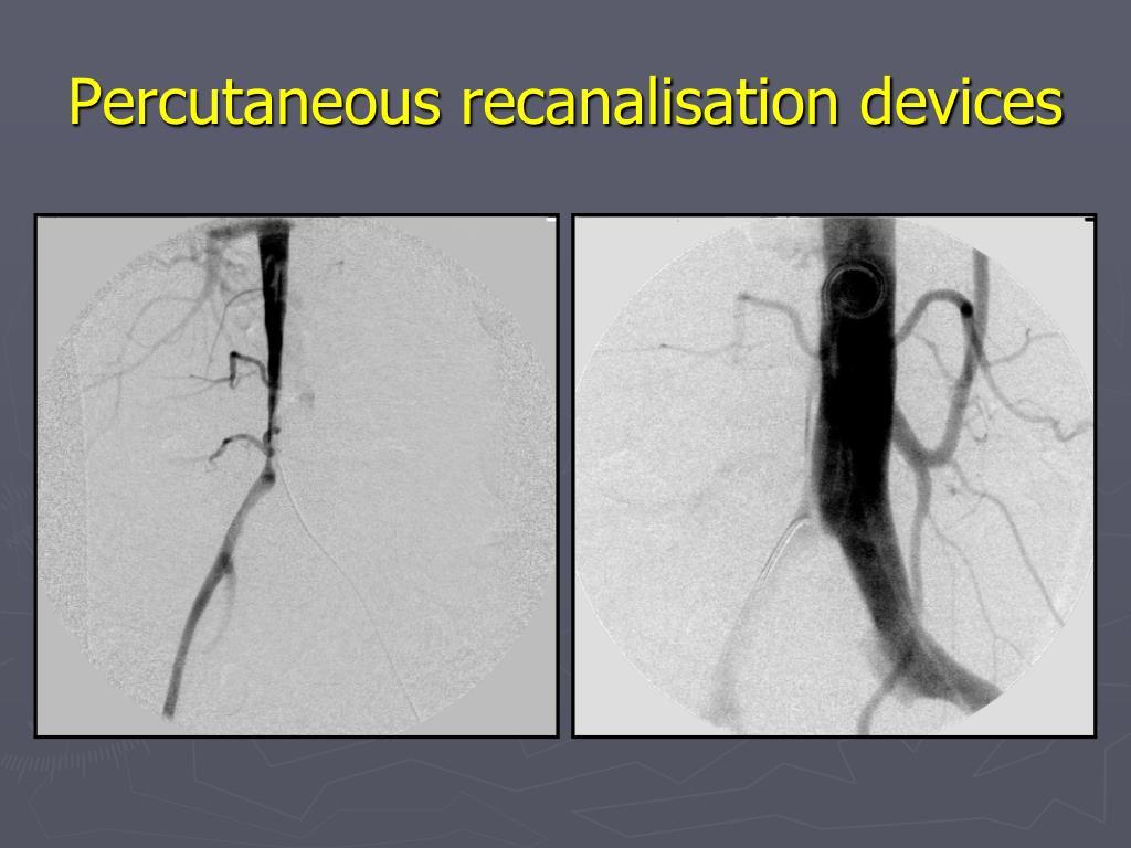 Percutaneous recanalisation devices