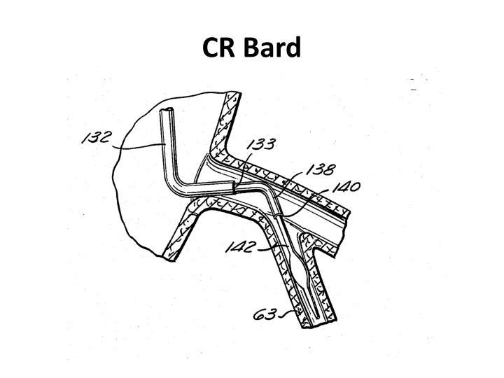 ppt - patent infringement ii powerpoint presentation