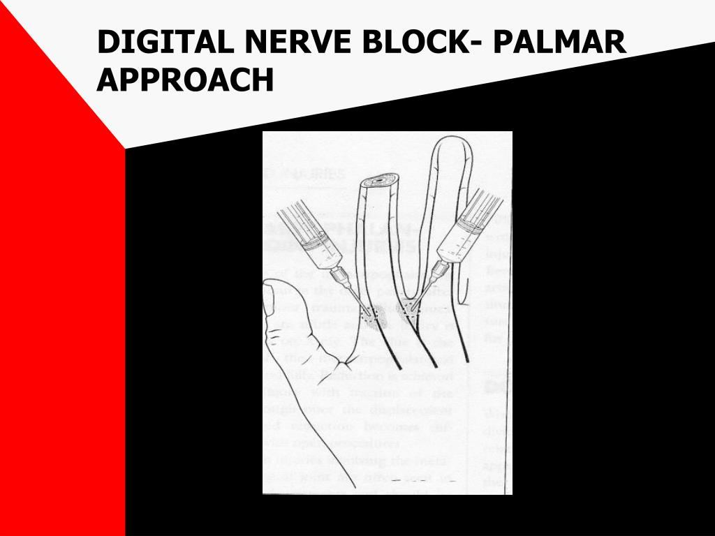 DIGITAL NERVE BLOCK- PALMAR APPROACH
