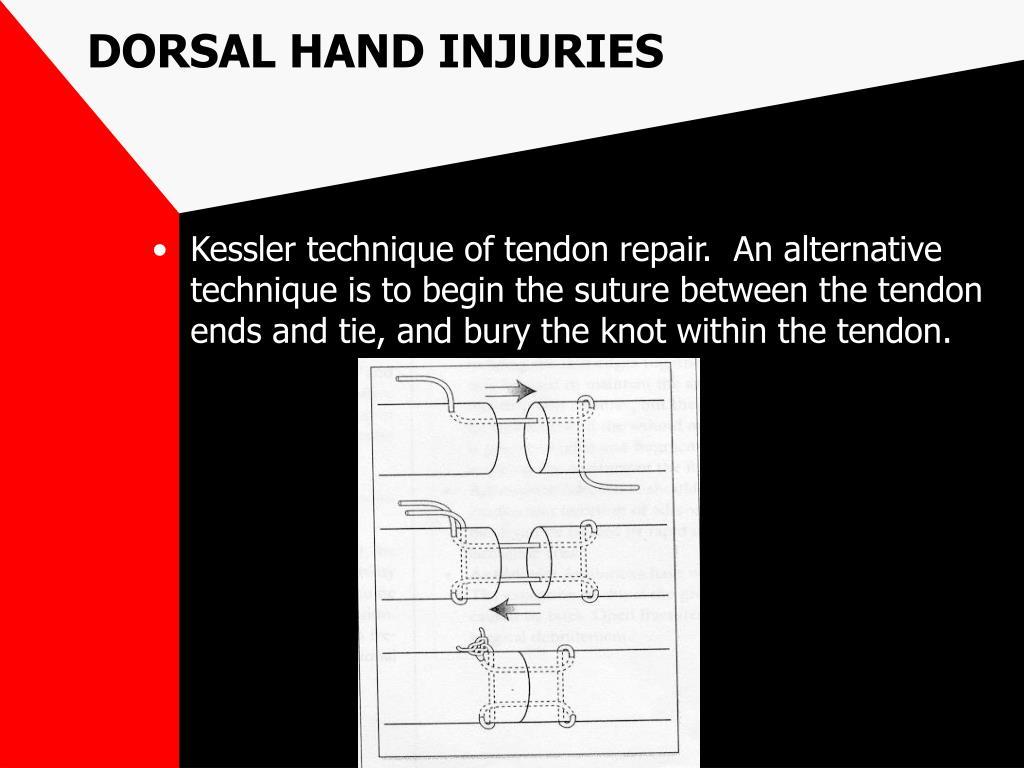 DORSAL HAND INJURIES