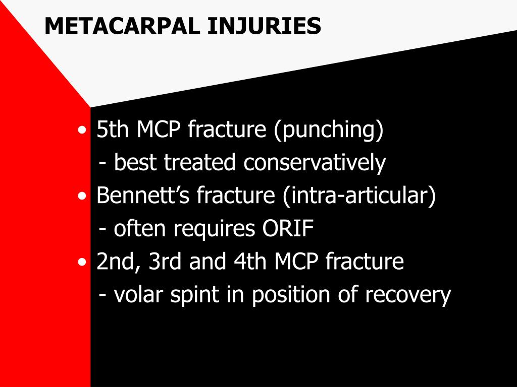 METACARPAL INJURIES