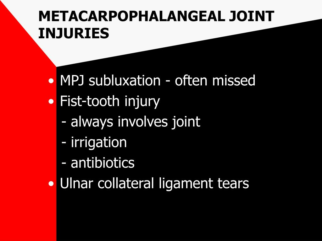 METACARPOPHALANGEAL JOINT INJURIES