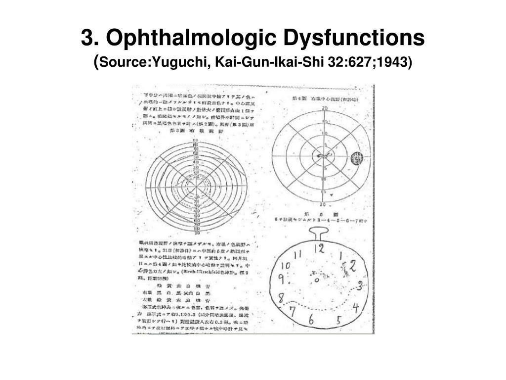 3. Ophthalmologic Dysfunctions