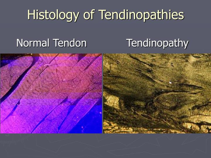 Histology of Tendinopathies