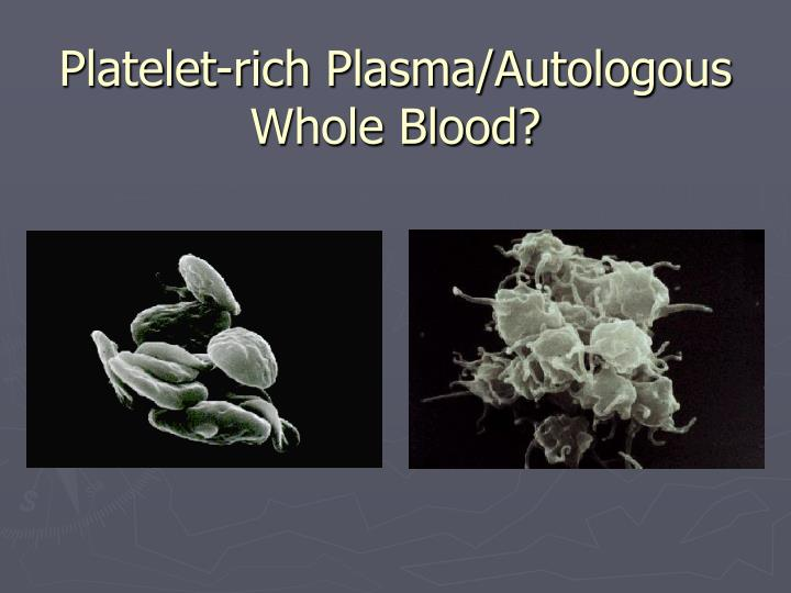 Platelet-rich Plasma/Autologous Whole Blood?